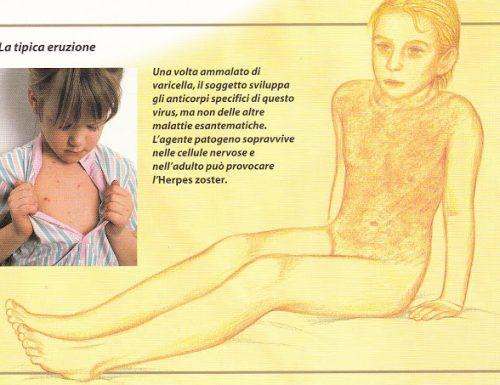 VARICELLA (Chickenpox)